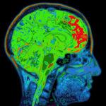 44349697 - mri image of head showing brain
